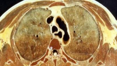 断层解剖学(山东联盟)